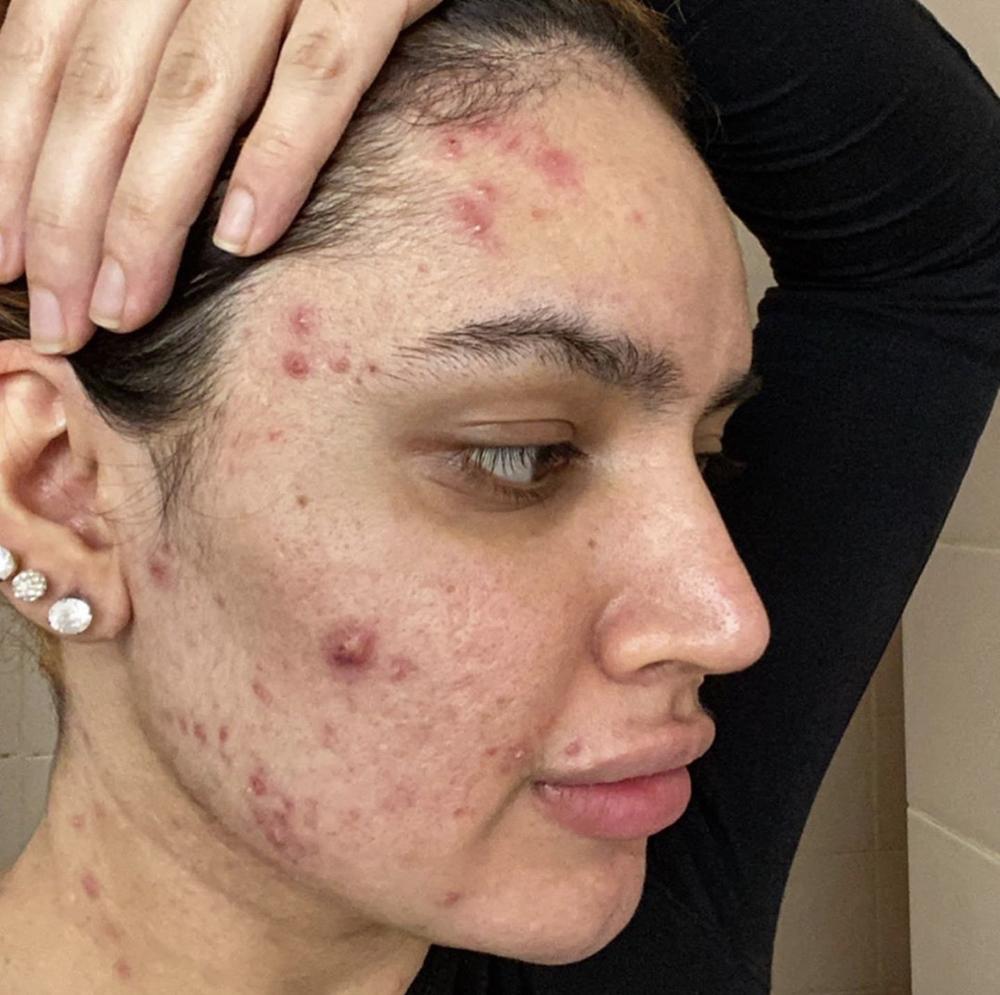 积极接受自己的皮肤状况 痤疮需要被正常化看待
